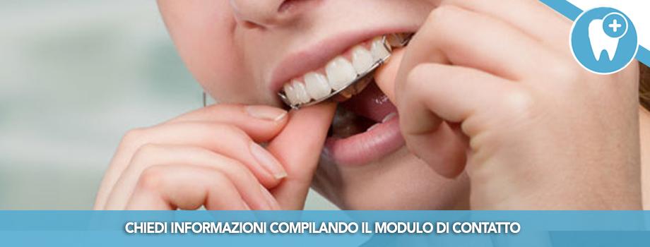 Ortodonzia Accelerata per avere denti dritti più velocemente