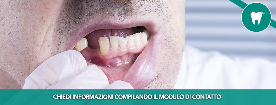 Alcol e denti: quali sono i rischi?