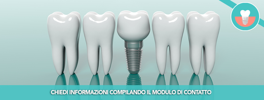 Implantologia Dentale, recupero estetico e funzionale