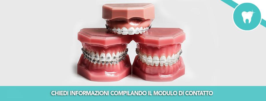 Ortodonzia Classica Fissa e Mobile