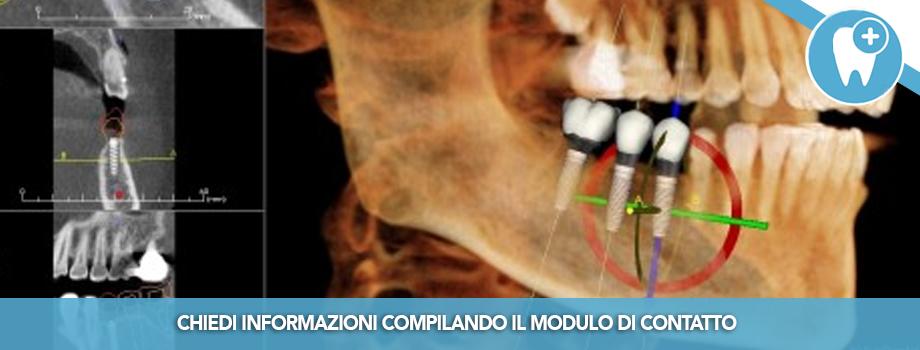 Gli esami tridimensionali radiologici in odontoiatria: vantaggi e caratteristiche delle CBCT