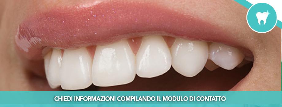 Ricostruzioni estetiche (Odontoiatria Estetica)