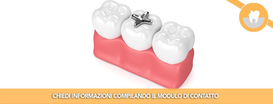 Rimozione Amalgama dai Denti